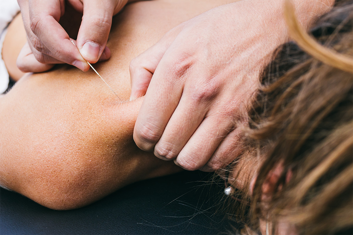 dry needling procedure